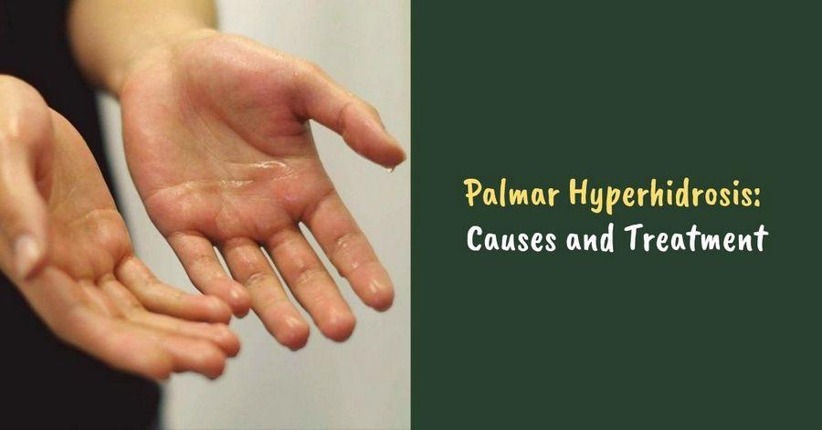 Palmar Hyperhidrosis