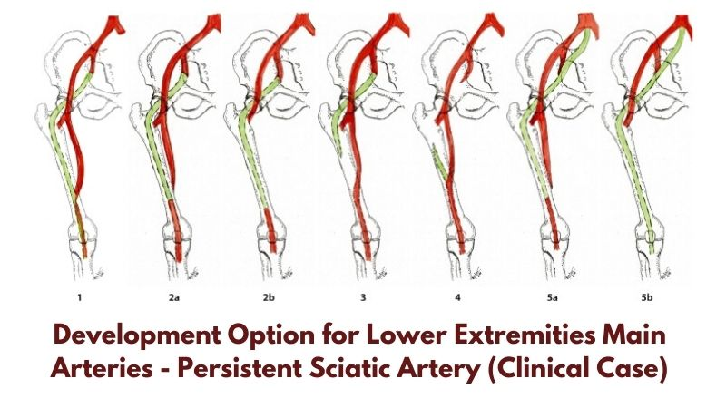 Development Option for Lower Extremities Main Arteries - Persistent Sciatic Artery (Clinical Case)