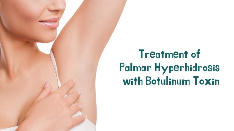 Treatment of Palmar Hyperhidrosis with Botulinum Toxin